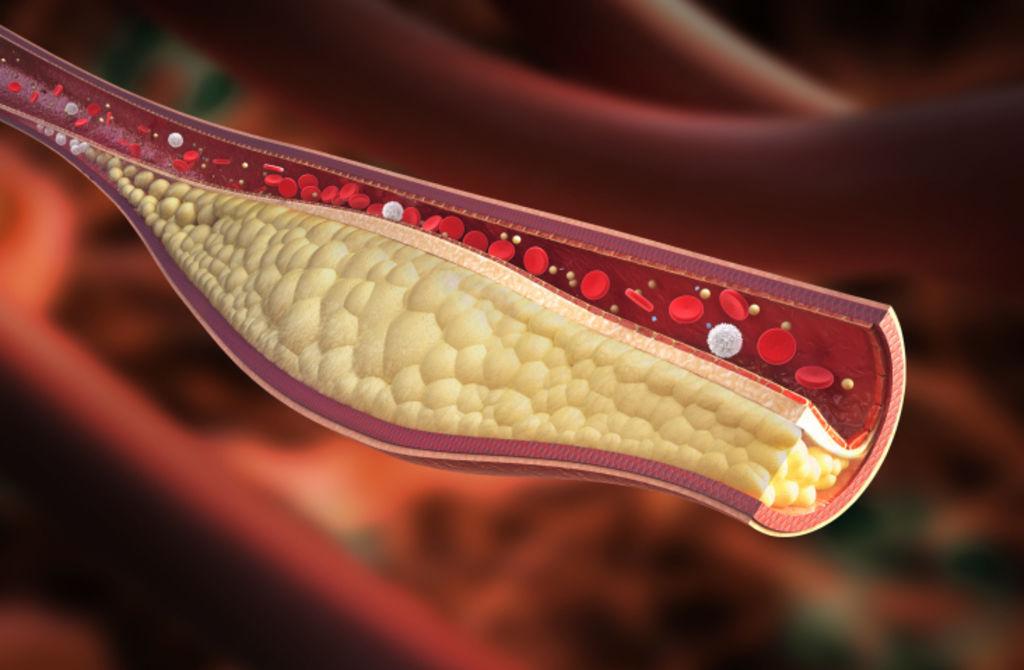 Cholesterol-polemique-autour-de-l-usage-des-statines-a-titre-preventif_width1024